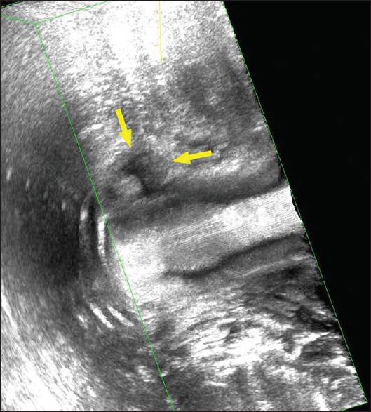Anal pain of an unusual cause: Role of endoanal ultrasound