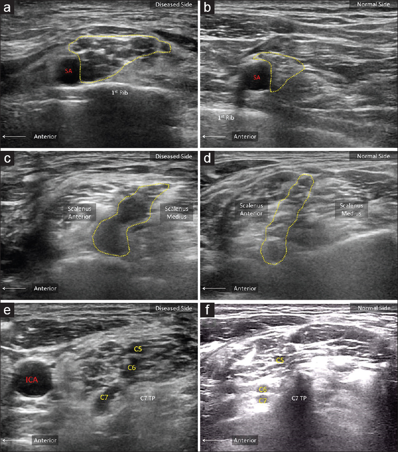 Journal of Medical Ultrasound : Table of Contents